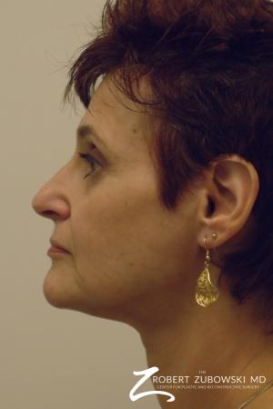 Facelift: Patient 9 - Before and After Image 2