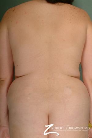 Liposuction: Patient 25 - Before Image