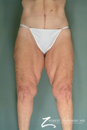 Thigh Lift: Patient 1 - Before Image