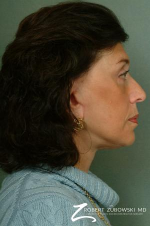 Brow Lift: Patient 6 - After Image 2