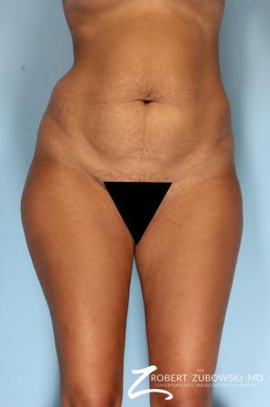 Liposuction: Patient 49 - Before Image