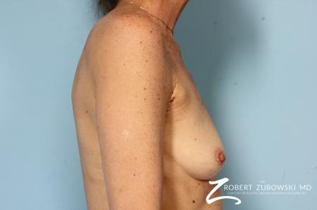 Breast Augmentation: Patient 39 - Before and After Image 3