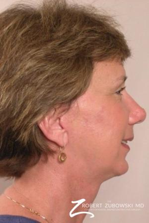 Facelift: Patient 8 - After Image 2