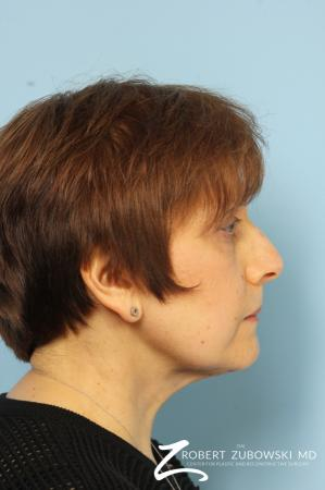 Blepharoplasty: Patient 14 - After Image 2