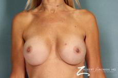 Breast Augmentation: Patient 11 - After Image