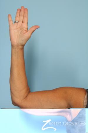 Arm Lift: Patient 5 - After Image 2