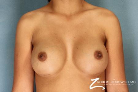 Breast Augmentation: Patient 12 - After Image 1