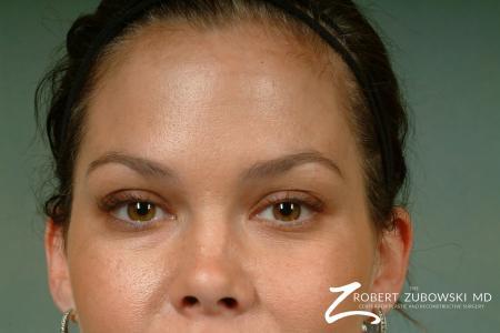 Latisse: Patient 2 - After Image 2