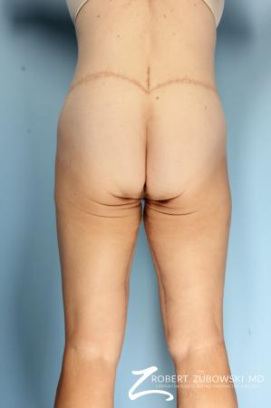 Thigh Lift: Patient 4 - After Image 2