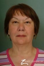 Blepharoplasty: Patient 23 - After Image
