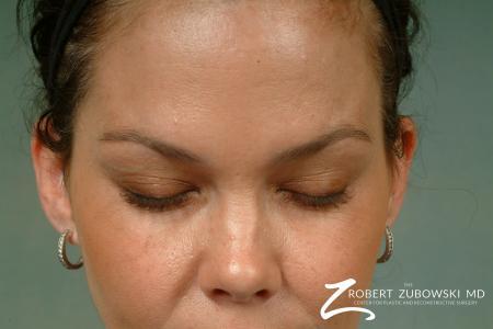 Latisse: Patient 2 - After Image