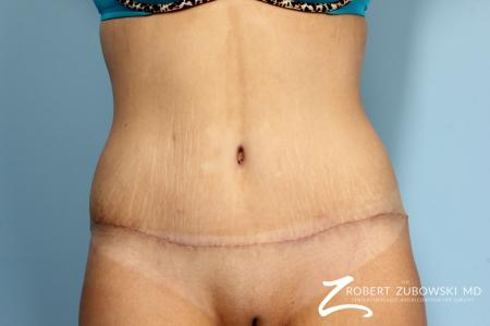 Tummy Tuck: Patient 17 - After Image 1