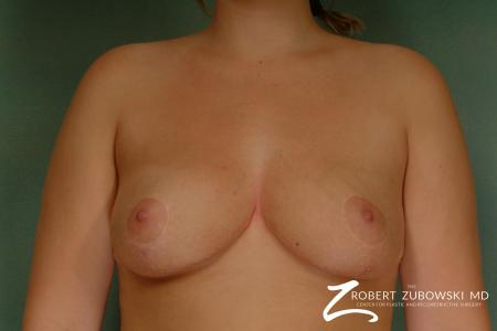 Breast Reduction: Patient 14 - After Image