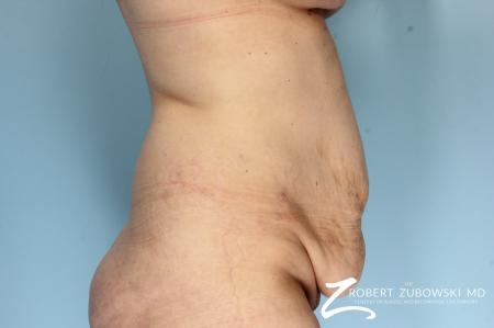 Body Lift: Patient 9 - Before Image 2