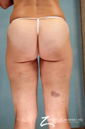 Cellulaze: Patient 1 - After Image 2