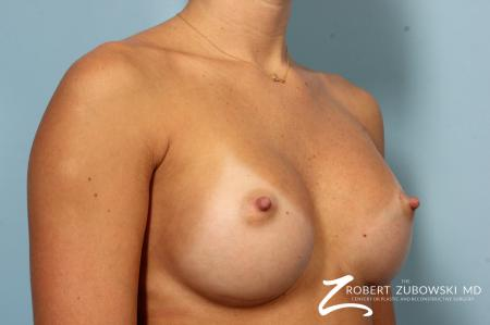 Breast Augmentation: Patient 37 - After Image 2