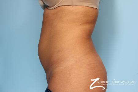 Liposuction: Patient 12 - Before Image 1