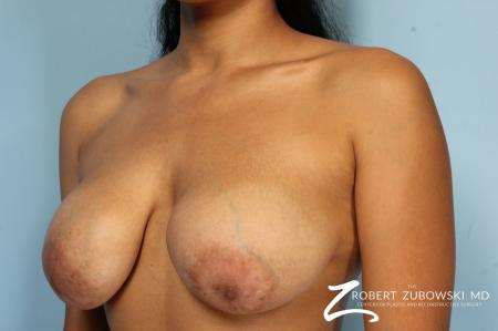 Mastopexy: Patient 1 - Before and After Image 3