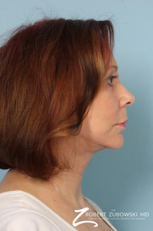 Facelift: Patient 17 - After Image 2