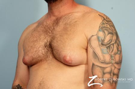 Gynecomastia: Patient 10 - Before and After Image 2