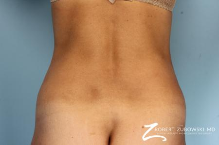 CoolSculpting®: Patient 5 - After Image 2