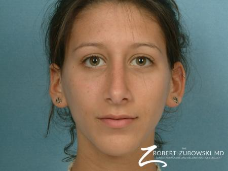 Rhinoplasty: Patient 8 - After Image 1