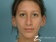 Rhinoplasty: Patient 8 - After Image