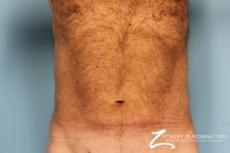 Liposuction: Patient 18 - After Image