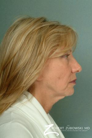 Facelift: Patient 13 - Before and After Image 2