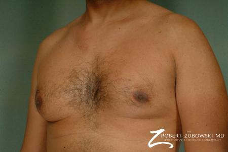 Gynecomastia: Patient 8 - Before and After Image 2