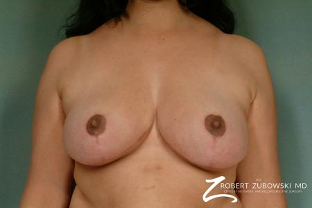 Breast Reduction: Patient 15 - After Image 1