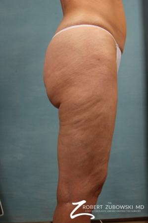 Cellulaze: Patient 1 - Before and After Image 3