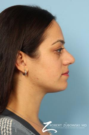 Rhinoplasty: Patient 15 - Before and After Image 2