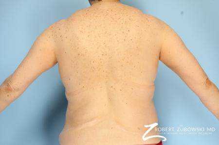 CoolSculpting®: Patient 2 - Before Image 3