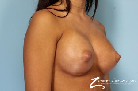 Breast Augmentation: Patient 34 - After Image 2