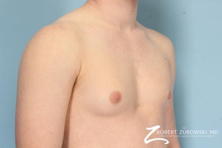 Gynecomastia: Patient 11 - Before Image 2