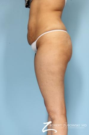 Butt Augmentation: Patient 3 - Before Image