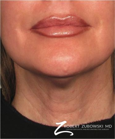 Ultherapy®: Patient 2 - After Image 1