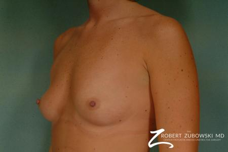 Breast Augmentation: Patient 4 - Before and After Image 2