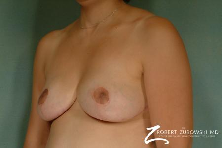 Breast Reduction: Patient 8 - After Image