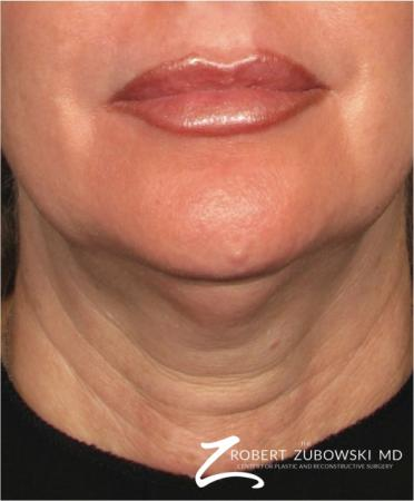 Ultherapy®: Patient 2 - Before Image
