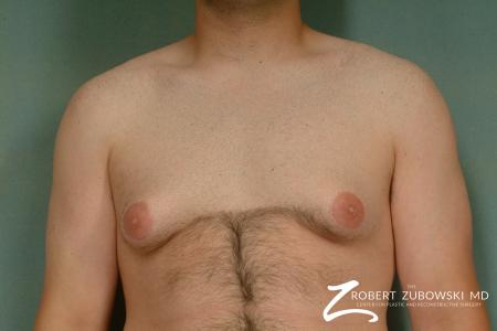 Gynecomastia: Patient 1 - Before Image