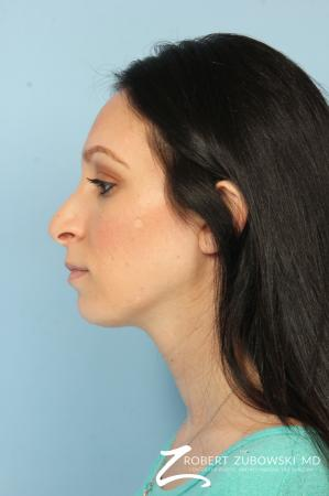 Rhinoplasty: Patient 25 - Before Image 2
