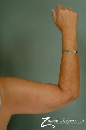 Liposuction: Patient 23 - After Image 2