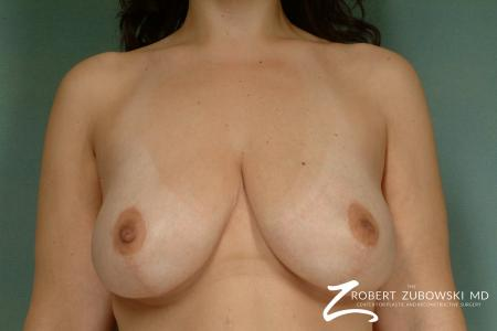 Breast Lift: Patient 8 - After Image