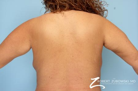 Liposuction: Patient 9 - After Image