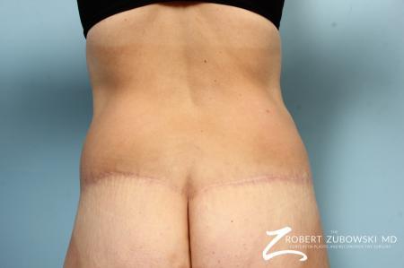 Liposuction: Patient 47 - After Image 1