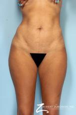 Liposuction: Patient 49 - After Image