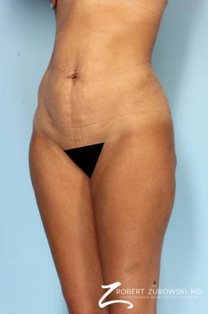 Liposuction: Patient 49 - After Image 2