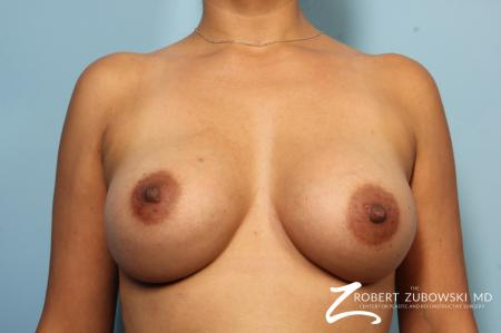 Breast Augmentation: Patient 33 - After Image